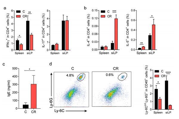 la fibra dietaria no fermentable previene la esclerosis multiple en ratones