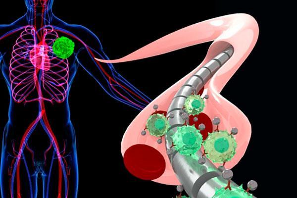 un hilo magntico captura las clulas tumorales circulantes