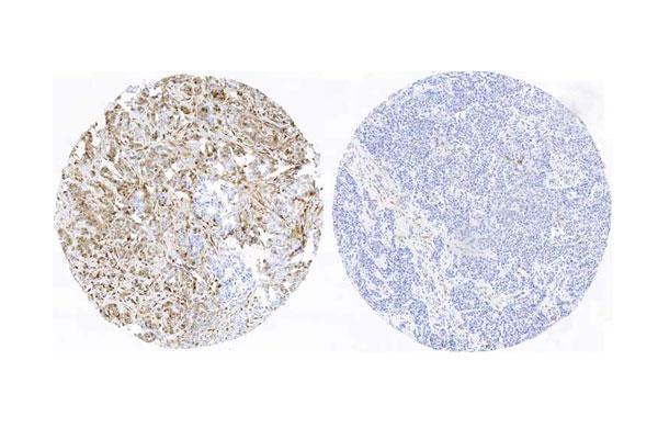 investigadores del cnio hallan los primeros indicadores de pronostico para el cancer de mama mas agresivo