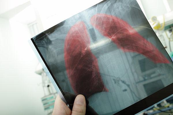 descubren-un-nuevo-tipo-de-celula-pulmonar-con-impacto-en-la-fibrosis
