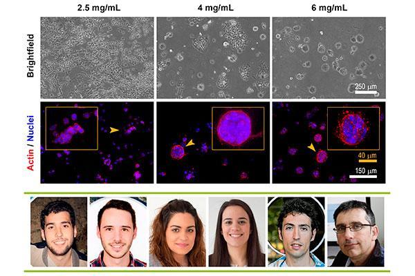 un estudio muestra cmo se mueven las clulas tumorales y se favorece la metstasis