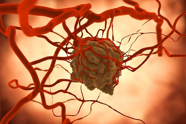 un nanofrmaco abre una nueva va para la prevencin de la metstasis en el cncer colorrectal