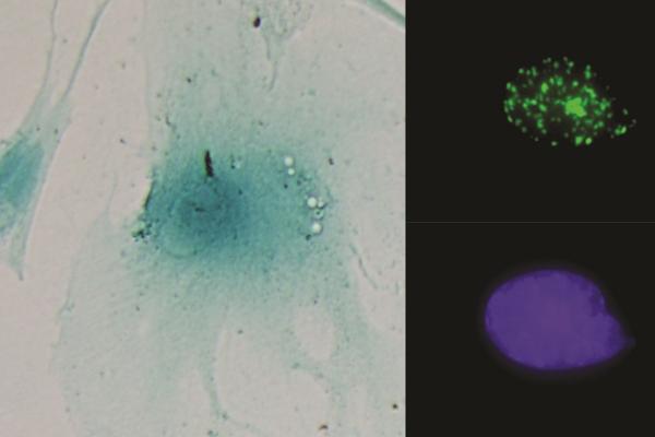 identifican un nuevo circuito celular que aumenta el crecimiento tumoral en cncer de colon