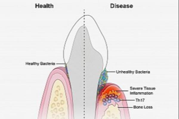 un-subgrupo-de-linfocitos-t-es-clave-en-la-progresion-de-la-enfermeda