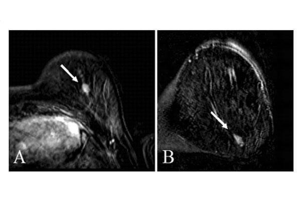 casi un tercio de los tumores de mama pasan inadvertidos en el cribado por resonancia magnetica