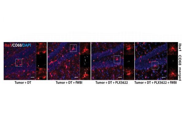un mecanismo inmunolgico causa el declive cognitivo asociado a la radioterapia cerebral