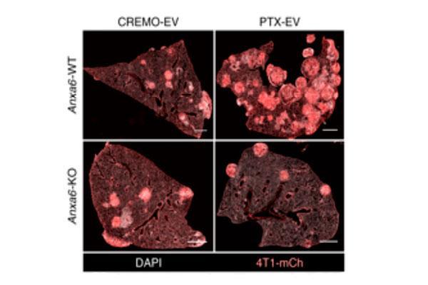 descubierto un mecanismo de induccin de metstasis por la quimioterapia neoadyuvante