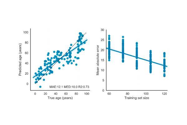 un metodo transcriptomico predice la calidad del envejecimiento