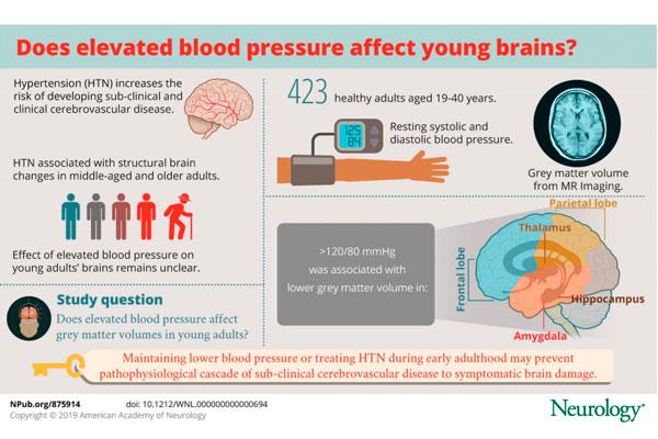 la-hipertension-en-adultos-jovenes-provoca-alteraciones-cerebrales-a