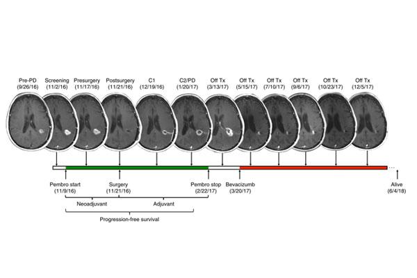 la inmunoterapia neoadyuvante ofrece beneficio en el glioblastoma recurrente