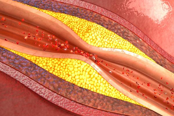 un arn largo no codificante protege de la aterosclerosis