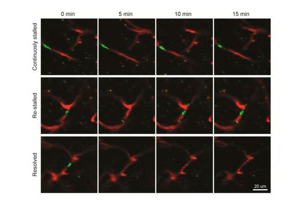 un nuevo enfoque para tratar el alzheimer muestra efectividad en modelos animales