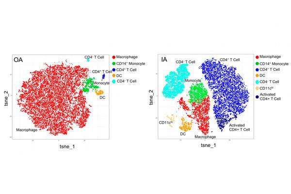 la proliferacion de los macrofagos distingue a dos subtipos de artrosis de rodilla