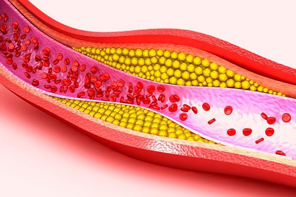 vinculan el colesterol elevado con la esclerosis lateral amiotrfica