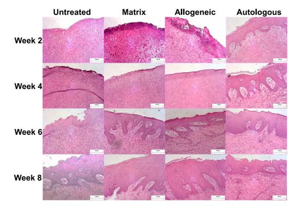 una bioimpresora reconstruye la piel directamente sobre las heridas