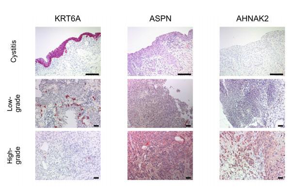 nuevo-potencial-biomarcador-para-el-diagnostico-diferencial-del-canc