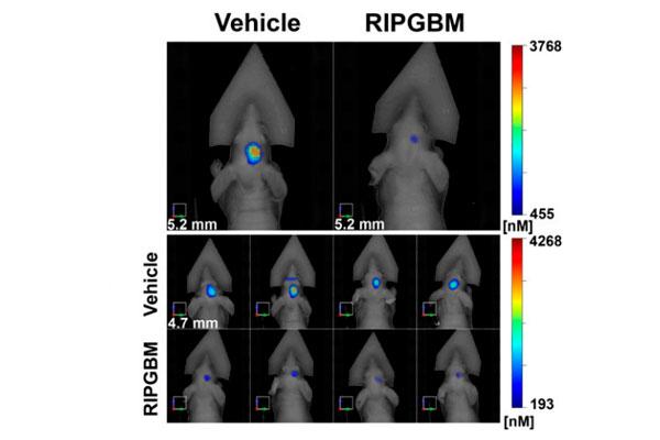 un prometedor compuesto elimina las celulas madre del glioblastoma