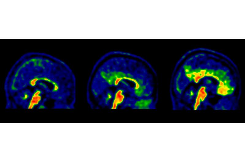 identifican nuevos valores de referencia de un biomarcador asociado al alzheimer