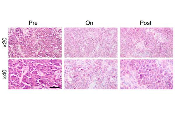la-microbiota-intestinal-regula-la-inmunidad-antitumoral-en-el-melano