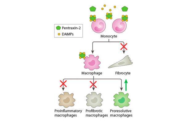 nueva-terapia-innovadora-para-la-fibrosis-quistica-idiopatica
