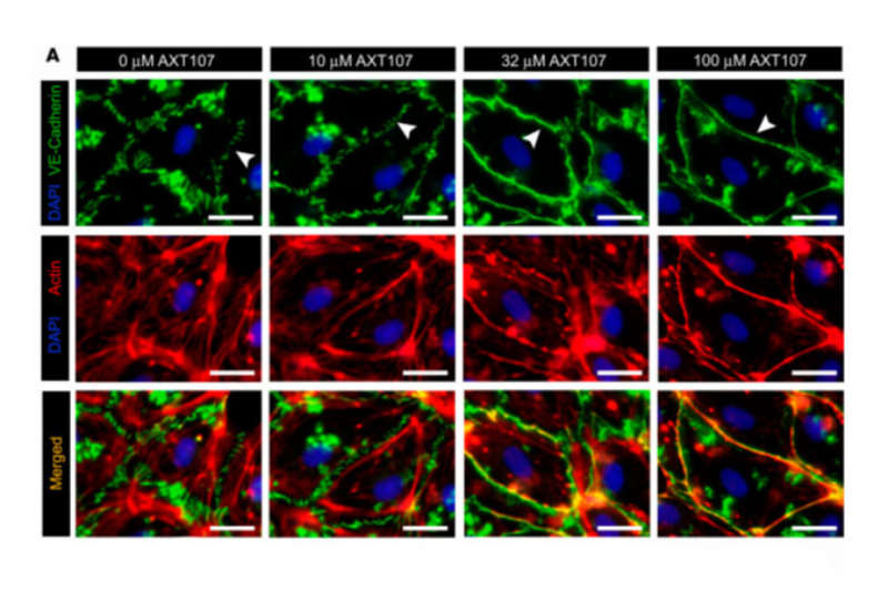 un pptido derivado del colgeno ofrece promesa en la terapia de la degeneracin macular