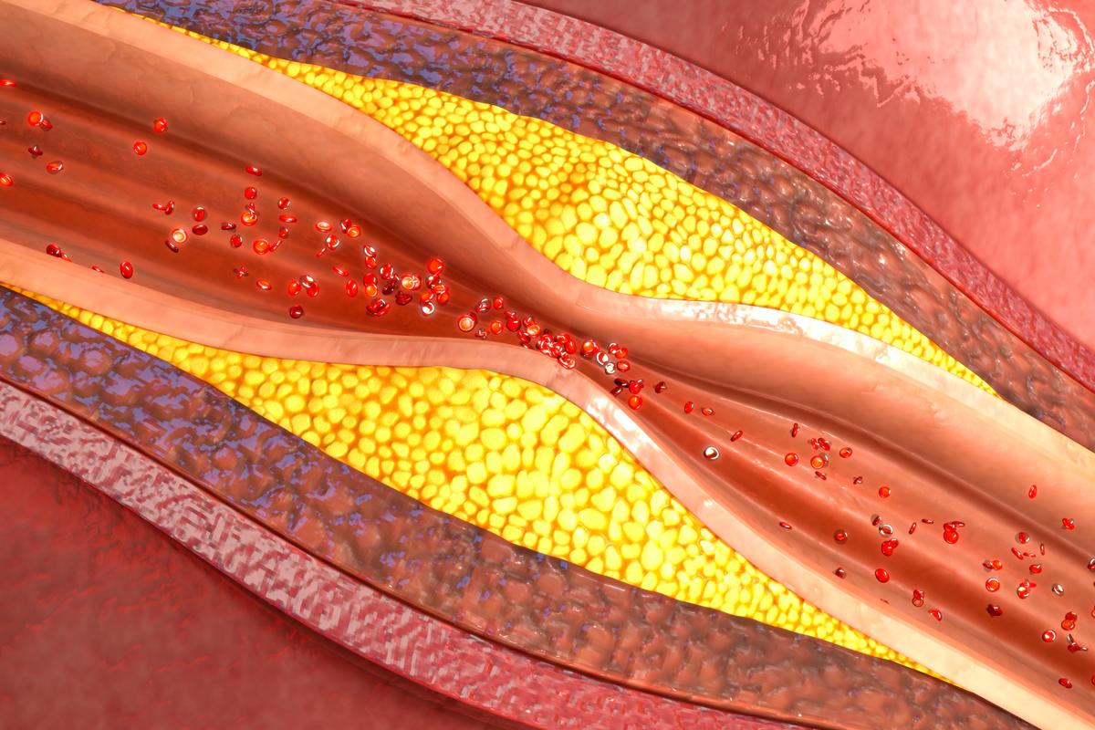 descubierto-el-mecanismo-por-el-que-el-colesterolldl-penetra-la-pared