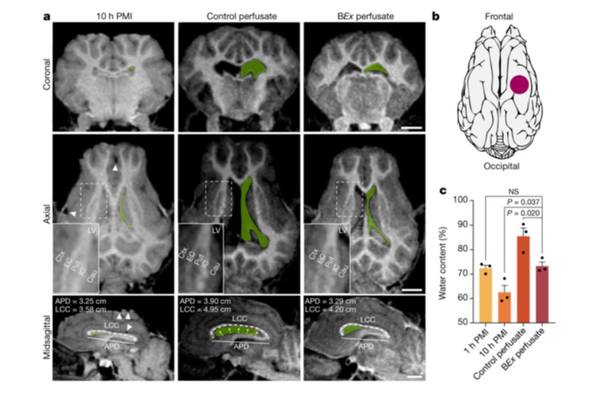 restauran-la-circulacion-cerebral-y-las-funciones-celulares-despues