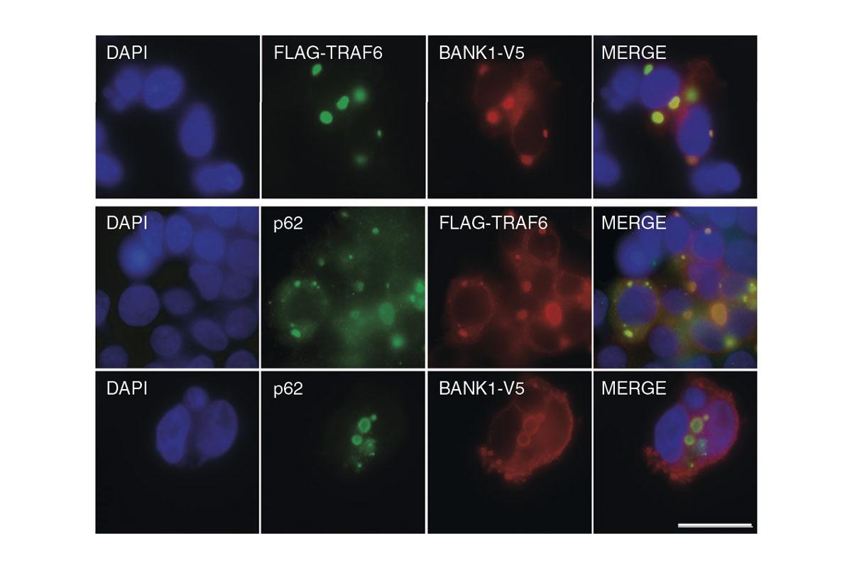 dos-variantes-geneticas-son-clave-en-el-desarrollo-del-lupus