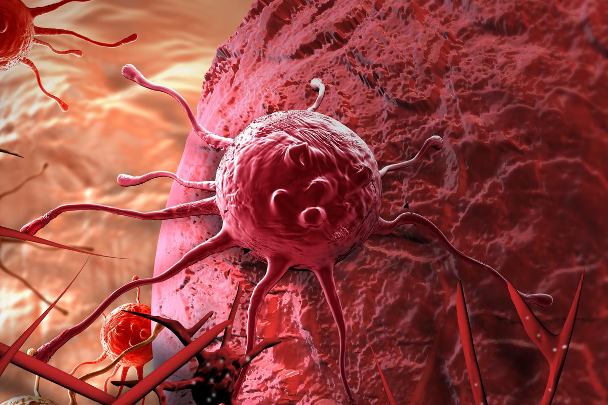 las-terapias-cart-prosiguen-su-avance-en-los-tumores-solidos