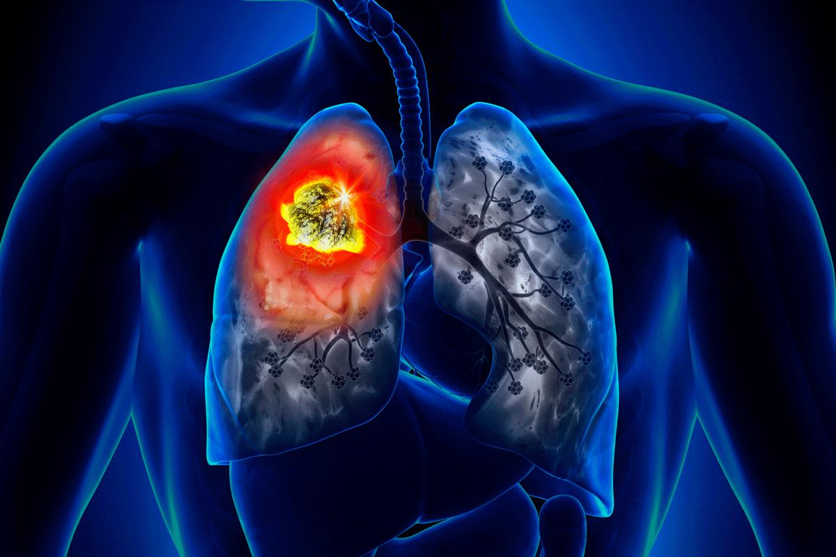 demasiados-antioxidantes-pueden-favorecer-la-diseminacion-del-cancer