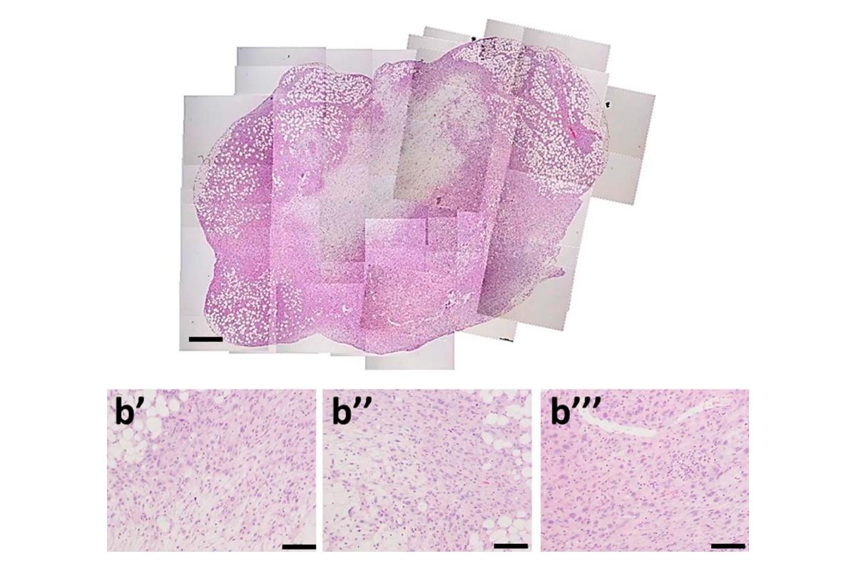un-tratamiento-combinado-logra-remitir-el-cancer-de-vejiga-en-ratones