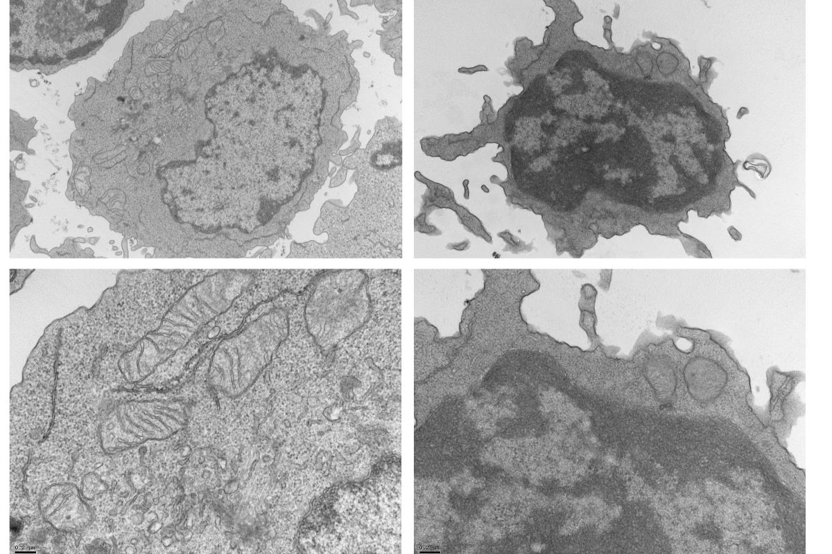 las-celulas-tumorales-expresan-proteinas-en-su-superficie-capaces-de