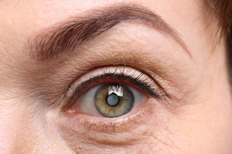 el-74-de-los-espanoles-con-catarata-consulta-al-oftalmologo-sobre-s