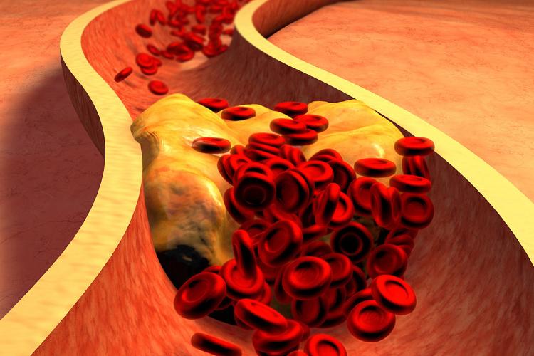 dos-dosis-de-inclisiran-reducen-el-colesterol-durante-un-ano