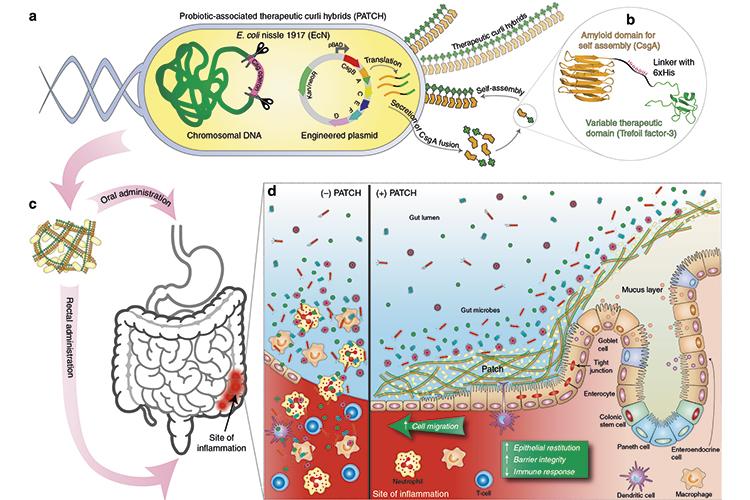 un-probiotico-modificado-promueve-la-reparacion-de-la-mucosa-intesti