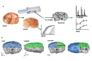 avanza-el-desarrollo-de-una-biotinta-para-la-impresion-3d-de-protes