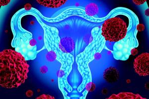 avances-en-el-cancer-endometrial