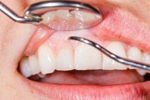 padecer-periodontitis-grave-incrementa-las-posibilidades-de-sufrir-enf