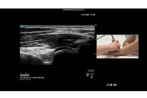 reumatologos-reciben-formacion-en-ecografia-en-el-primer-taller-100
