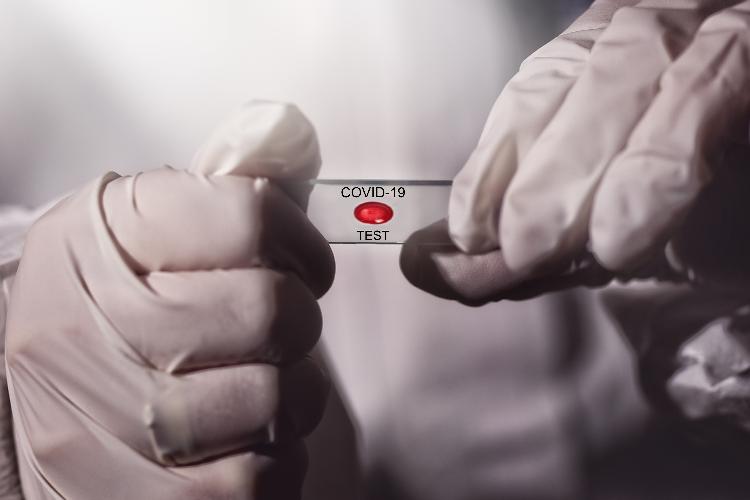 covid-madrid-pide-que-las-clinicas-dentales-y-las-farmacias-puedan-realizar-test-de-antigenos-------
