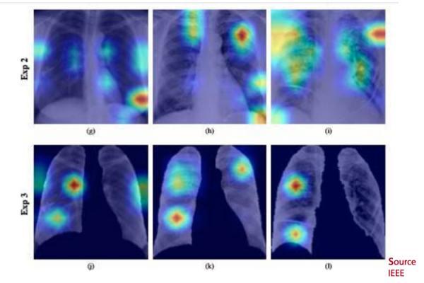 inteligencia-artificial-y-radiografias-de-torax-anticipan-el-diagno