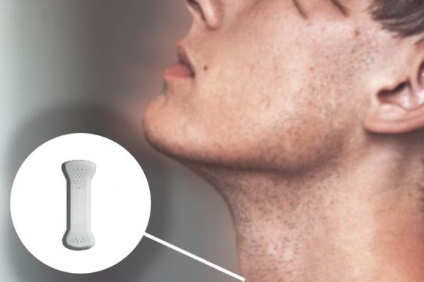 nuevas-impresiones-3d-para-el-cancer-de-esofago-y-la-necrosis-avascu