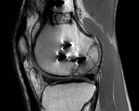 el-trasplante-de-cartilago-fresco-alternativa-a-la-protesis-de-rodi