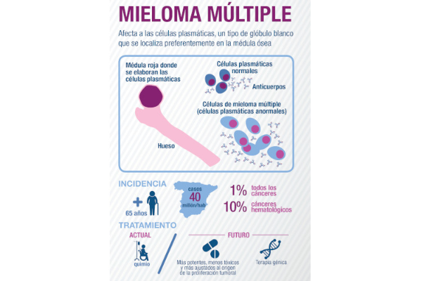 mieloma-multiple-un-cancer-potencialmente-curable