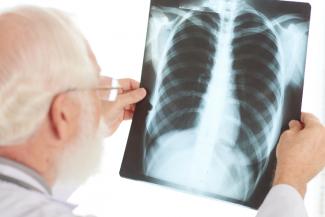 averiguan-como-la-tuberculosis-destruye-los-pulmones