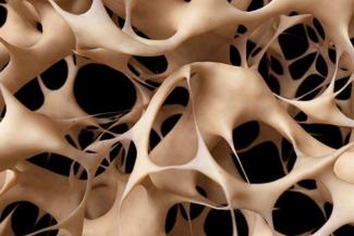 generan-un-nanosistema-capaz-de-revertir-la-osteoporosis