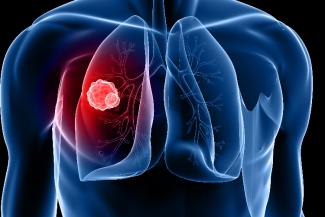 impacto-de-la-exposicion-al-radon-en-la-mortalidad-por-cancer-de-pu
