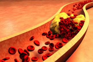 novedades-en-el-tratamiento-de-las-alteraciones-vasculares-derivadas-d