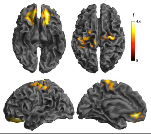 la-obesidad-infantil-refleja-alteraciones-en-el-cerebro