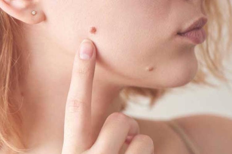 dermatologia-estetica-a-la-vanguardia-de-las-tecnicas-esteticas